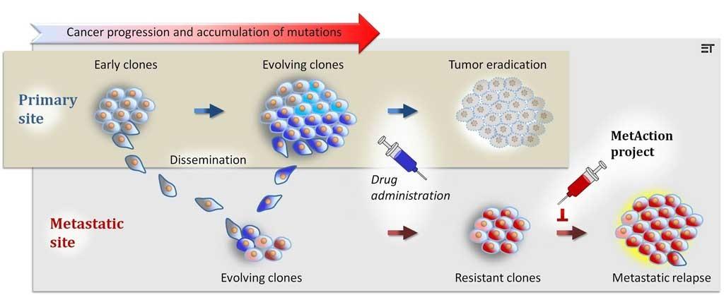 Figur 1. Tumorheterogenitet og metastasering. Primærtumor akkumulerer kontinuerlig nye molekylære aberrasjoner under sykdomsprogresjon. Metastaserende tumorkloner får således dominerende, biologiske karakteristika som er forskjellig fra sin opprinnelsessvulst. Behandling rettet mot biologisk konstitusjon i primærtumor, og som gir ønsket behandlingseffekt i denne, vil derfor nødvendigvis ikke være virksom i disseminerte dattersvulster. Individualisert behandling av metastatisk kreftsykdom må således baseres på molekylære karakteristika i pasientens metastatiske svulster og målrettes mot sentrale regulatoriske mekanismer i disse lesjonene. Illustrasjon ved Ellen M. Tenstad, Institutt for kreftforskning, Oslo universitetssykehus.