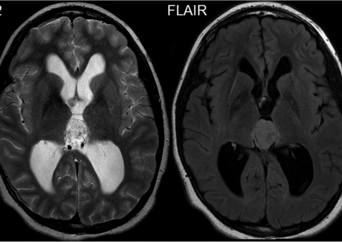 Figur 12: T2-weighted and FLAIR image of a 12-year-old male with intraventricular meningioma; the intraventricular tumor shows a T2- and FLAIR-hyperintense signal. The hyperintense intraventricular tumor is easy to see on the FLAIR image because of the suppression of CSF signal.