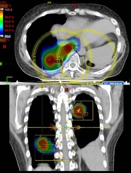 Figur 5: Eksempel på stereotaksi-plan mot oligometastaser i lunge