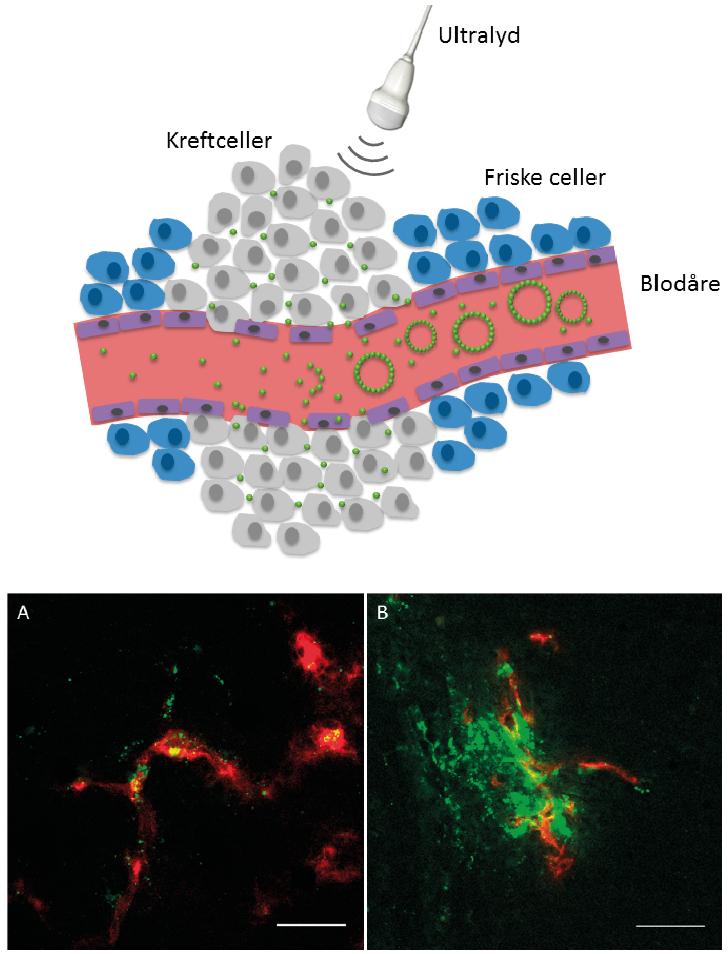 Figur 2: Øverst: Skjematisk illustrasjon som viser hvordan mikroboblene ankommer svulsten. Der blir de knust av ultralyden, slik at nanopartiklene dyttes ut i vevet til kreftcellene. På denne måten kan vi transportere cellegift mer effektivt til svulsten. Nederst: mikroskopibilder (fra mus) som viser blodårer i rødt og nanopartikler i grønt, fra en svulst som ikke er behandlet med ultralyd (A) og en som har blitt behandlet med ultralyd (B) 2. Scale bar er 50 µm.