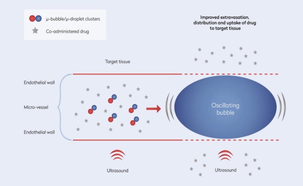 Figur 3: ACT Mekanismer.  Ved lokal ultralyd eksponering av svulsten vil ACT komponenten generere en større boble som midlertidig deponerer i patologisk mikrovaskulatur. Ytterligere ultralyd gjør at ACT boblen oscillerer, strekker på blodåreveggen og gjør denne mer permeable for legemiddel. Dette fører til lokalt øket opptak, forbedret distribusjon av virkestoff og en betydelig økning i terapeutisk effekt (illustrasjon: Phoenix Solutions AS / RIM DESIGN)