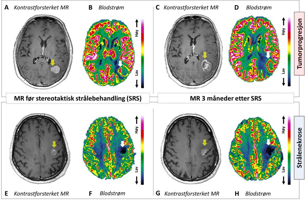 Figur 2: Måling av stivhet i hjernevev ved hjelp av MR Elastografi (MRE). MR-bilder i en frisk frivillig person som viser konvensjonell anatomi (venstre side) og vevsstivhet (høyre side). Ulikt tradisjonelle MR-bilder viser MRE-teknikken funksjonelle mål på de mekaniske kreftene i bløtvevet. Ved å sammenligne MRE med blodstrømsmålinger håper vi å kunne måle redusert perfusjon som følge av tumorvekst. Sammen med økt stivhet i bindevevet kan denne veksten potensielt klemme sammen blodårene i kreftsvulsten og redusere effekten av behandling. Metoden skal valideres opp mot bildeveiledet nevrokirurgi i pasienter med glioblastom.