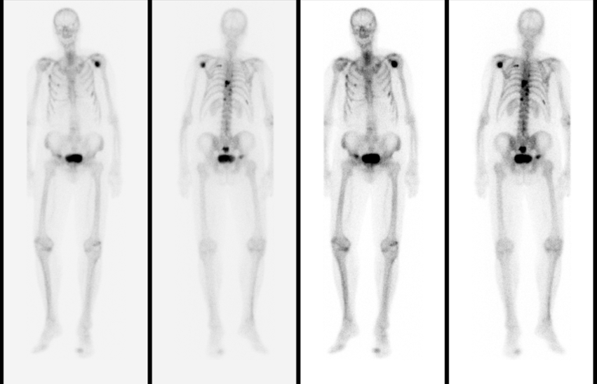 Figur 10: Skjelettscintigram som viser metastasering, men utenom fokuset i høyre acetabulum og et fokus i nedre del av sacrum er det ingen sikre funn andre steder i bekkenet eller lumbalt.