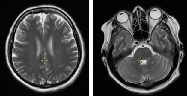 Figur 3a og 3b: MR: multiple små cerebrale og cerebellare metastaser