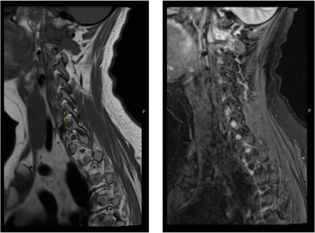 Figur 4a og 4b: MR: metastase i C1 med overvekt i laterale kompleks på høyre side og bløtveskomponent med affeksjon av rotkanalen C2