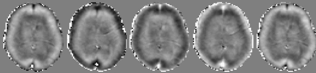 Figur 1: Skjærbølgen beveger seg gjennom hodet. I MR-elastografi legger vi et element som vibrerer mot hodet slik at en såkalt 'skjærbølge' beveger seg gjennom hjernevevet. MR-bildene viser et utsnitt av hjernen med ulike tidspunkter i bølgens bevegelse fra hjernebarken og inn mot midten av hjernen. Hvor mye vevet flytter på seg som følge av denne bølgen brukes til å lage stivhetskartet.