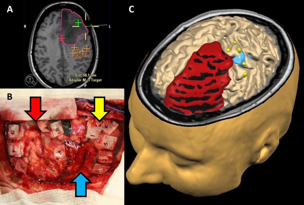 Figur 3: Bildeveiledet nevronavigasjon under operasjon. Ved hjelp av sensorer på operasjonsinstrumentene kan MR-bildene kombineres med instrumentene. Dette gir oss mulighet til å sammenligne verdiene på MR-bildene (A) med de histologiske svarene fra vevsprøvene tatt i tilsvarende område (B). Defargede pilene i (B) vises med tilsvarende farger i en 3-dimensjonal rekonstruksjon av MR-bildene (C), hvor det røde området representerer kreftsvulsten. Blå og gule områder representerer punkter fra nevronavigasjonen som kan gjenkjennes på MR-bildene.