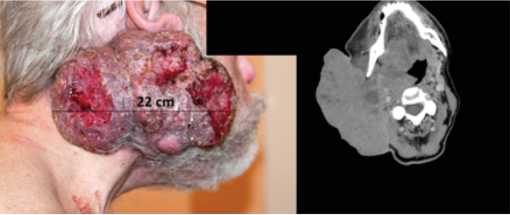 Bilde 1: Lokalavansert (T4N3M0) oropharynxcancer