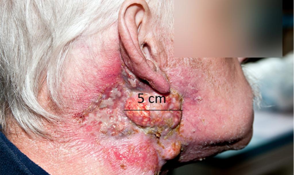 Bilde 3: Etter strålebehandling. Pasienten hadde lokoregional sykdomskontroll fram til han døde 2 år senere.