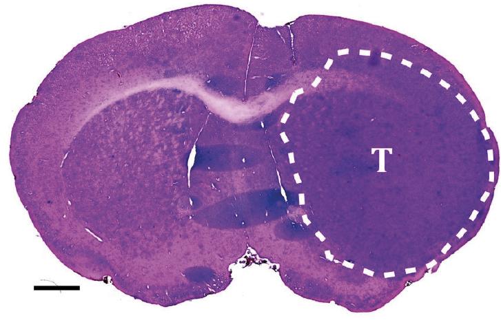 Figur 2. Ved å transplantere kreftstamceller til hjernen hos immundefekte mus danner kreftstamcellene en invasiv svulst med histopatologiske trekk som ved et glioblastom. Snittet er fra en musehjerne farget med hematoxylin & eosin. Svulsten er avgrenset makroanatomisk med den stiplede linjen og markert med bokstaven T. Skaleringslinje 1 mm. Copyright forfatterne.