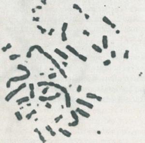 Figur 3: Lymfocyttmetafase med kromosomaberrasjoner: et pentasentrisk, et tetrasentrisk og fire disentriske kromosomer, to ringkromosomer samt mange asentriske fragmenter. Prøve tatt dagen etter ulykken (2).