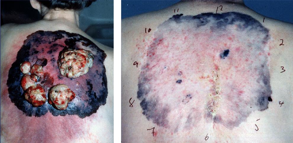 Bilde 1. Lokalavansert melanom i medfødt kjempenevus før og 5 måneder etter strålebehandling
