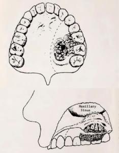 Figur 3: Tegning av president Clevelands tumor. Stiplet linje viser snittføring under inngrepet (Bulletin, American College of Surgeons)