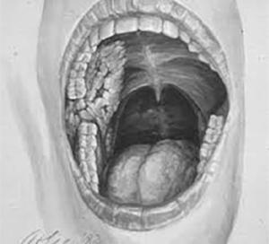 Figur 5: Tegning av Freuds orale cancer, helt forenlig med et verrukøst karsinom (Wikipedia)